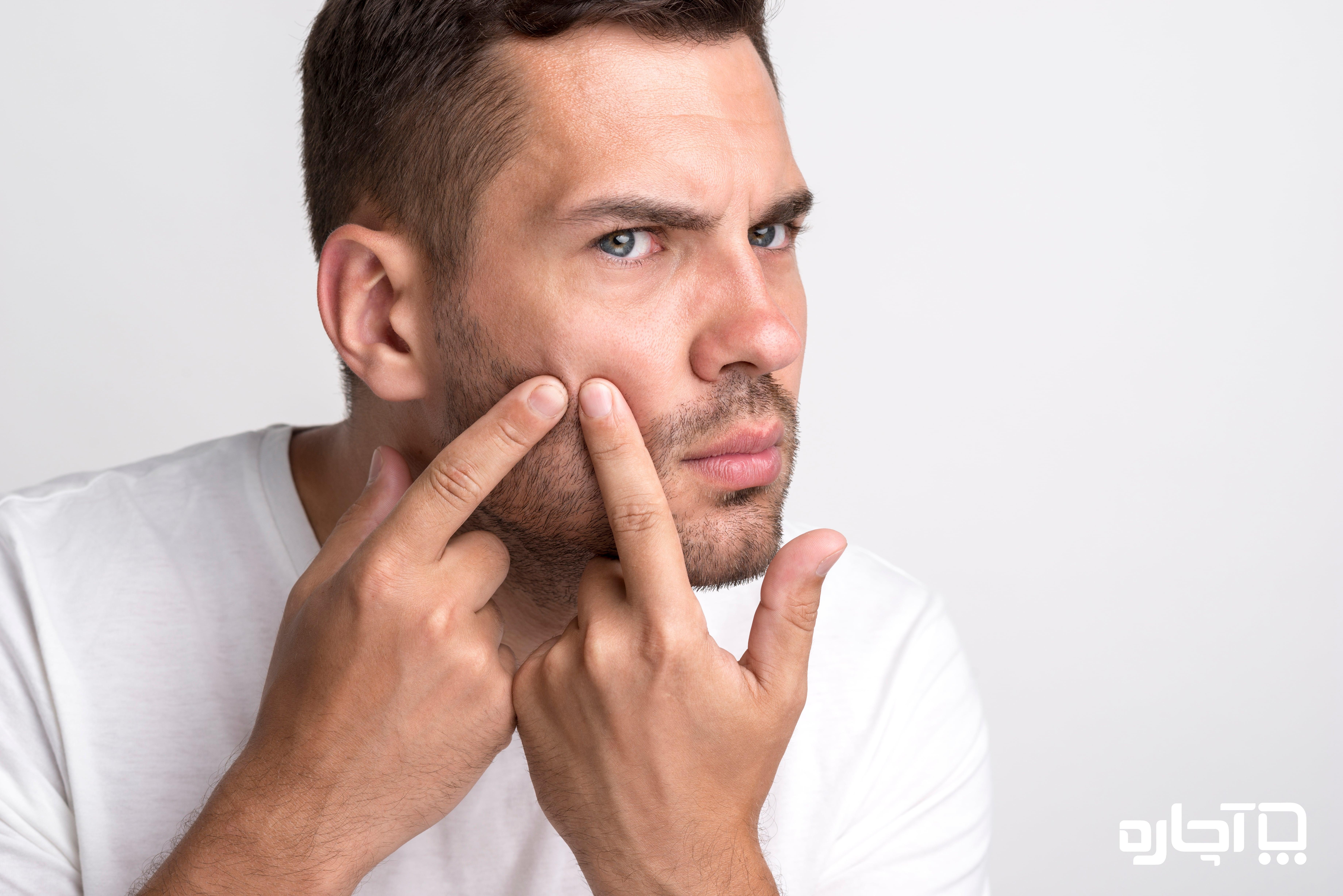 درمان های داروئی برای جوش سر سفید