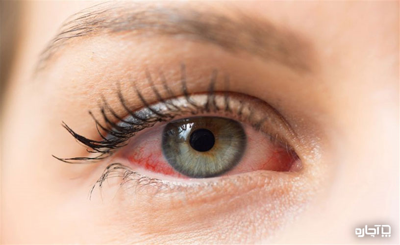 حساسیت چشم با مژه مصنوعی